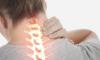Ce este spondiloza lombara?
