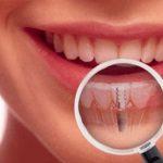 Tot ce trebuie sa stiti despre implanturile dentare